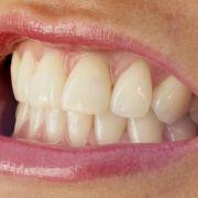 Zähneknirschen sorgt für Selbstzerstörung (Foto)