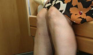 Syndrom der ruhelosen Beine (Foto)