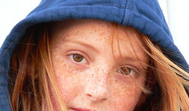 Menschen mit Sommersprossen sollten ihre Haut besonders gut im Blick behalten.