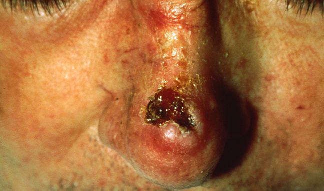 Der Stachelzellkrebs oder auch Spinaliom ist eine bösartige Geschwulst, die ständig wächst.