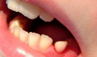 Zahnfleischbluten (Foto)