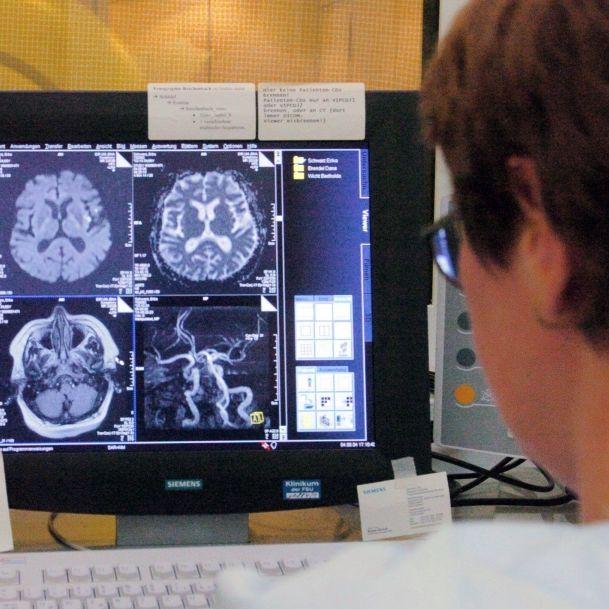 Amoklauf in den Blutgefäßen! DAS sind die Folgen des Gefäßrheumas (Foto)