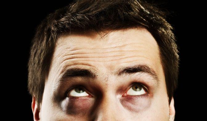 Können diese Augen lügen? An keiner anderen Körpergegend wird so schnell sichtbar, wenn die Haut um Hilfe schreit. Das Alarmsignal: Augenringe.