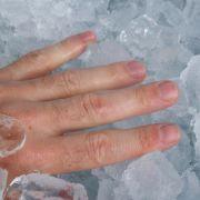 Au, das tat weh: Quetschungen, wie sie bei einem eingeklemmten Finger entstehen, sind zwar äußerst schmerzhaft, aber gut zu behandeln.