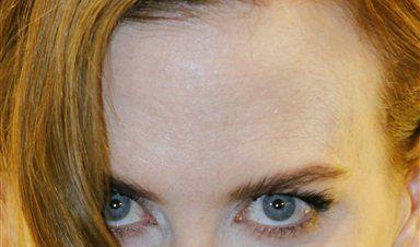 Nicole Kidman (Foto)