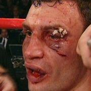 Wegen eines Cuts wurde der Kampf zwischen Lennox Lewis und Vitali Klitschko 2003 abgebrochen.