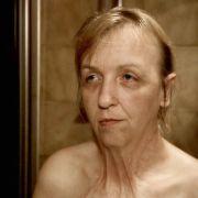 Monika N. (45) trägt seit einem schweren Brandunfall in ihrem vierten Lebensjahr schwer an den körperlichen und seelischen Narben.