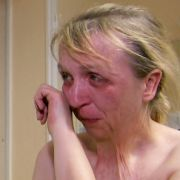 Unter Tränen berichtet sie dem behandelnden Plastischen Chirurgen Dr. Klaus Walgenbach von der Uniklinik Bonn von ihrem Leiden.
