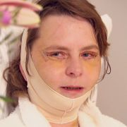 Elke ist 43 - findet aber, dass sie viel älter aussieht. Ein Lifting verleiht ihrem Gesicht neue Frische.
