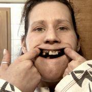 Auch der Zustand von Lilians Zähnen ist schrecklich.