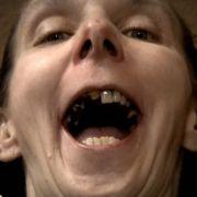 Nicole war viele Jahre nicht beim Zahnarzt.