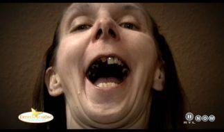 Nicole war viele Jahre nicht beim Zahnarzt. (Foto)