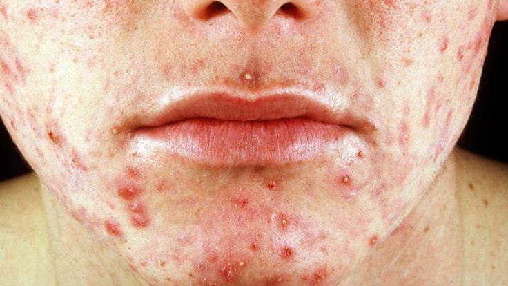 Häufiges Waschen kann Akne verschlimmern. (Foto)