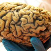 26-Jährige hat Zwillings-Embryo im Gehirn (Foto)
