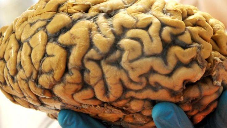 Das zweite Ich im Kopf: 26-Jährige hat Zwillings-Embryo im