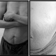 Die Frauen zeigen ihre Körper auf der Internetseite, um anderen Müttern Mut zu machen.