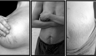 Die Frauen zeigen ihre Körper auf der Internetseite, um anderen Müttern Mut zu machen. (Foto)
