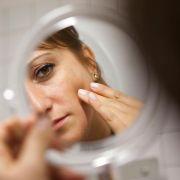 Wenn Stress die Haut zum Streuselkuchen macht - Spätakne lindern (Foto)