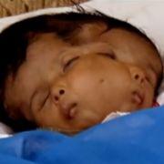 Lali Singh wurde zwei Monate alt.