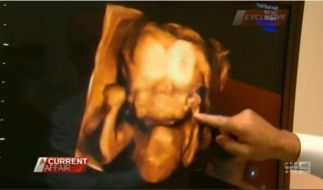 Im 3-D-Ultraschall ist das Doppelgesicht klar zu erkennen. (Foto)