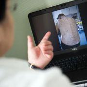 Von wegen ausgerottet: Krätzemilben bohren sich unter die Haut (Foto)