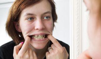 Seit zehn Jahren war Julia nicht beim Zahnarzt. (Foto)