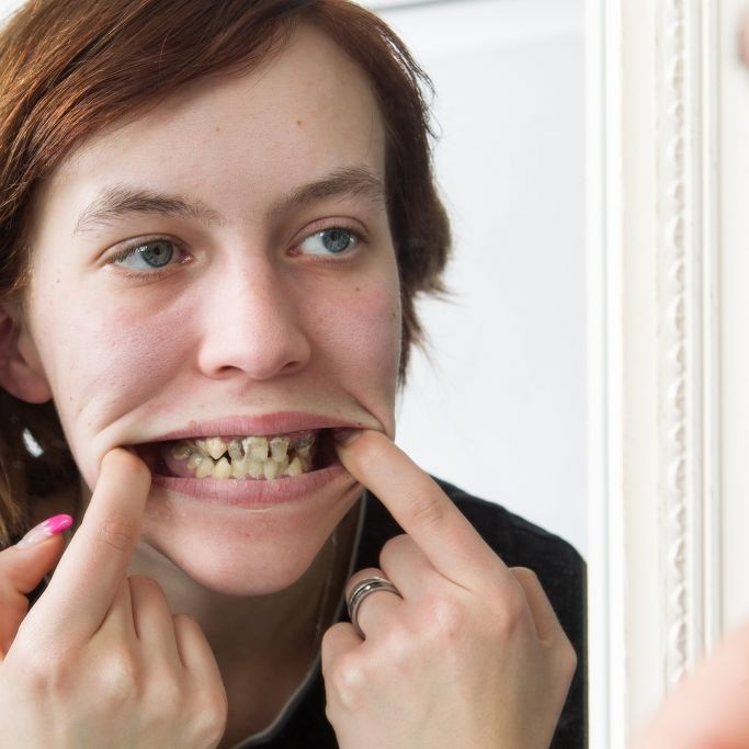 Aus Angst vorm Zahnarzt: Julias Zahn-Baracke zerfällt (Foto)