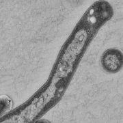 Armut und Resistenzen erschweren Kampf gegen Tuberkulose (Foto)