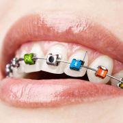 Online-Aprilscherze: Kamera-Zahnspange und Handy-Finger (Foto)
