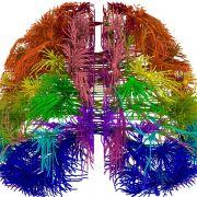 Forscher erstellen Karten zur Entwicklung und Verdrahtung des Gehirns (Foto)