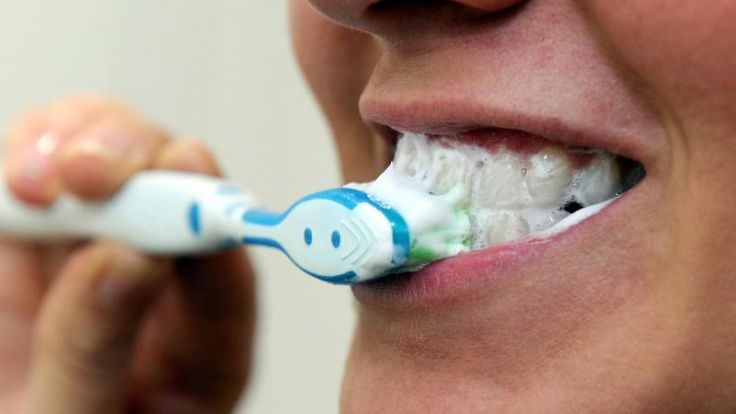 Zahnfleischbluten kann auf schlechte Mundpflege hindeuten (Foto)
