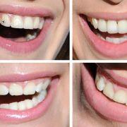 Lachen - hochansteckend und trotzdem gesund (Foto)