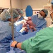 Kurz nach dem Kaiserschnitt halten die beiden Mädchen Jenna und Jillian Händchen.