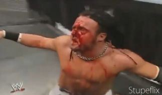 Joey Mercury (Adam Birch) bekam ungeschützt eine Leiter ins Gesicht. (Foto)