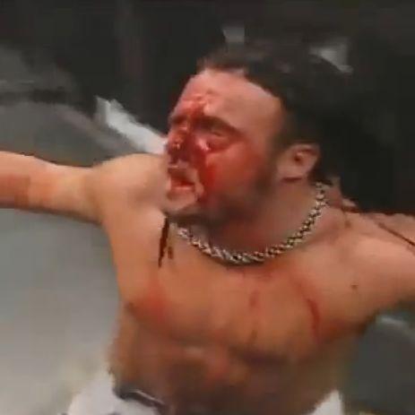 Diese fünf Wrestling-Aktionen gingen schief (Foto)