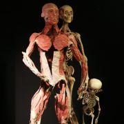 Kritiker von «Körperwelten» sehen durch solche Bilder die Würde des Menschen verletzt.