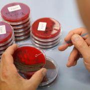 Grünen-Studie: Problem-Keime in Wurstprodukten (Foto)