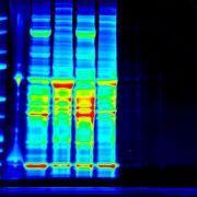 Wissenschaftler erstellen Proteinkatalog des Menschen (Foto)