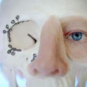 Gesichtschirurgen verwenden zunehmend digitale 3-D-Technik (Foto)