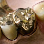 Zahnersatz zu teuer: Jedem Achten fehlen Zähne (Foto)