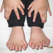 15 Finger, 16 Zehen: So viele Finger und Zehen wie bei diesem kleine Junge aus dem Nordosten Chinas wurden zuvor noch nie bei einem Menschen gezählt.