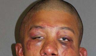 Raymond Frolander nach der Behandlung durch den Vater seines Opfers. (Foto)