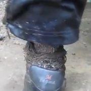 Das wurmzerfressene Bein eines Russen.