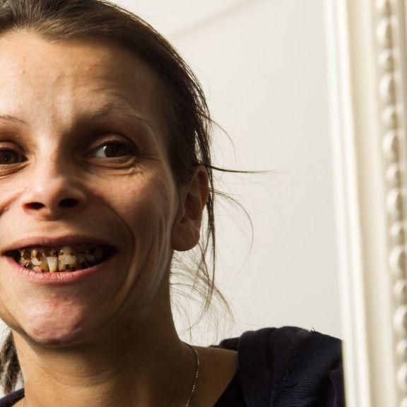 Widerlich! Mundhöhle des Grauens bei Antje (Foto)