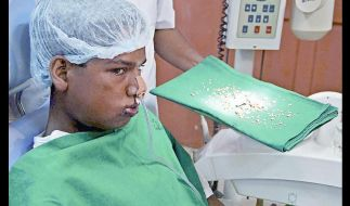 Im Kiefer von Ashik Gavai wurden 232 kleine Zähne gefunden. (Foto)
