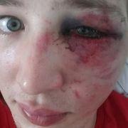Prügel-Opfer sucht per Facebook nach Täter (Foto)