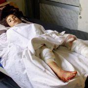 Vor allem syrische Kinder sind die Leidtragenden des Krieges, wie hier in Damaskus.