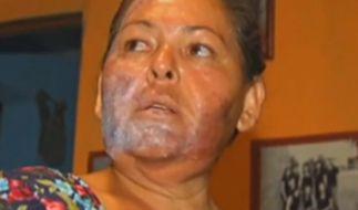 Diese Frau hat sich das Gesicht in einem Fluss in Mexiko verätzt. (Foto)