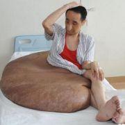 16 Stunden operierten die Ärzte, um den 110-Kilo-Tumor von dem Chinesen Yang Jianbin zu entfernen.
