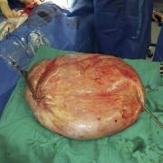 Dieses Bild zeigt einen riesigen gutartigen Tumor von 25 Kilogramm, welcher aus dem Schoß einer 47-jährigen Frau im Krankenhaus in Torrevieja, Alicante, Spanien entfernt wurde.